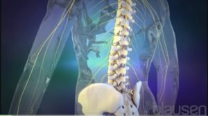 what are the symptoms of a failed lumbar fusion